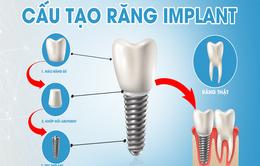 Chọn phương pháp trồng răng giả giá rẻ có an toàn hay không?