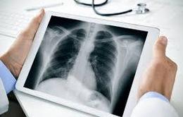 Số người mắc ung thư phổi tại Indonesia tăng mạnh