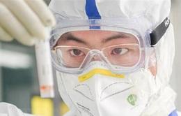 Nhật Bản thử nghiệm lâm sàng thuốc điều trị HIV để chống COVID-19
