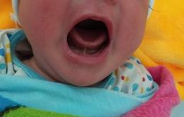 Dính thắng lưỡi ở trẻ sơ sinh có nguy hiểm?