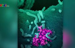 Mỹ thử nghiệm thuốc điều trị COVID-19 trên người
