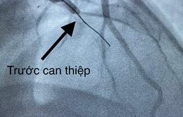 10 phút can thiệp cứu sống bệnh nhân nhồi máu cơ tim biến chứng ngưng tim