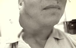 Tin lời đắp thuốc lá, người đàn ông suy kiệt vì mắc hai loại ung thư giai đoạn cuối