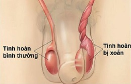 Đau tinh hoàn nhưng không viện điều trị, thiếu niên ở Quảng Ninh phải cắt tinh hoàn