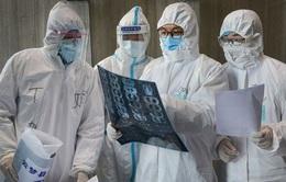 Virus gây bệnh COVID-19 lây sang người thế nào?