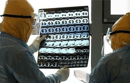 Lần đầu phát hiện virus gây bệnh COVID-19 trong não tủy bệnh nhân