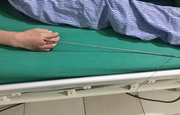 Ra suối bắn cá bằng súng tự chế, bé trai 13 tuổi bị mũi tên kim loại dài 60cm xuyên vào tay