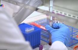 Thử nước bọt để phát hiện virus SARS-CoV-2