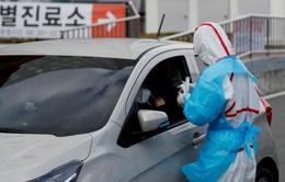 Xét nghiệm không nhất quán có thể là nguyên nhân tái dương tính với SARS-CoV-2 tại Hàn Quốc