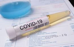 Mỹ thu hồi 12.000 bộ xét nghiệm SARS-CoV-2 do nhiễm khuẩn