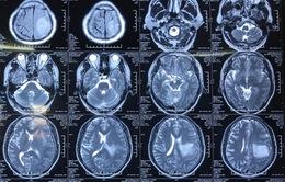 Thường xuyên đau đầu, yếu liệt người do khối u màng não kích thước lớn
