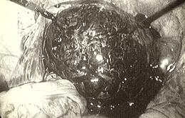 U buồng trứng xoắn khi mang thai - Biến chứng nguy hiểm cho mẹ và thai