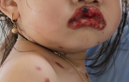 Điều trị thành công cho bé 3 tuổi mắc hội chứng Stevens-Jonhson
