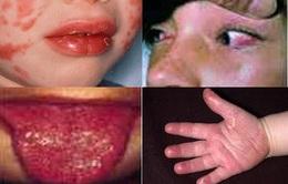 COVID-19 gây biến chứng chết người ở trẻ nhỏ