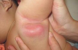 Hạch nách sau tiêm phòng lao ở trẻ có cần điều trị?