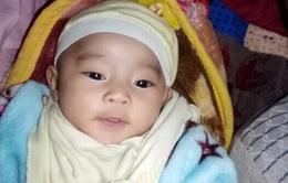 Bảo Châu - cô bé 7 tháng tuổi với trái tim không hoàn hảo