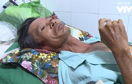 """Vụ sập công trình ở Đồng Nai: Nạn nhân nhớ lại giây phút """"xác định cuộc đời kết thúc"""""""