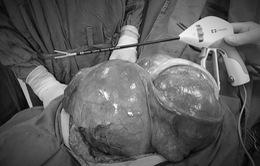 Cắt bỏ tử cung và khối u xơ năng hơn 5kg cho một phụ nữ