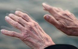 Hy vọng mới cho các bệnh nhân Parkinson