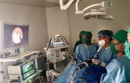 Phẫu thuật nội soi điều trị não úng thủy cho trẻ sơ sinh