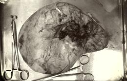 Tưởng có thai ở tuổi 51, vào viện phát hiện khối u chứa 5.000ml dịch