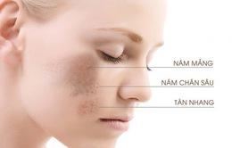 """Tất cả những điều bạn cần biết về """"tăng sắc tố da"""""""