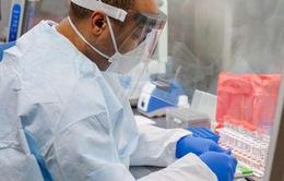 Italy thử nghiệm thành công kháng thể chống virus SARS-CoV-2