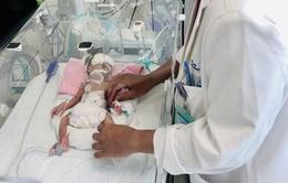 Cứu sống kịp thời bé sơ sinh non tháng bị teo ruột non nhỏ nhất Việt Nam