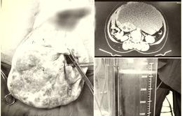 Phẫu thuật xâm lấn tối thiểu cắt u buồng trứng nặng 5kg chứa 3,2 lít dịch