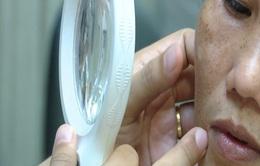 UV ở mức nguy hại, người bị rám má, viêm da tăng mạnh