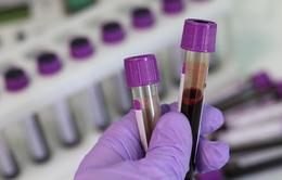 Phương pháp xét nghiệm không xâm lấn phát hiện mầm mống ung thư trước 4 năm