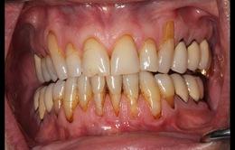 Thuốc lá điện tử có thể gây viêm nướu, các bệnh răng lợi khác