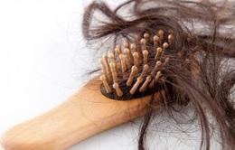 Tự ý mua thuốc xịt tóc, cô gái trẻ rụng gần hết tóc
