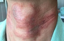 Cẩn trọng kiến ba khoang gây tổn thương da