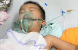 Bé trai 4 tuổi bị trâu húc thủng màng phổi
