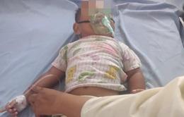 Uống dầu hỏa đựng trong chai nước giải khát, bé 16 tháng nhập viện