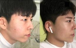 Nam sinh Hàn Quốc phẫu thuật thẩm mỹ để giống Park Bo Gum