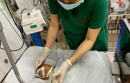 Bé sơ sinh bị bỏ rơi tại cổng chùa với nhiều vết tiêm chích, hôn mê