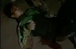 Xin cướp tha mạng, tài xế GrabBike vẫn bị đâm trọng thương