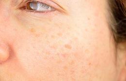 5 nguyên nhân gây ra tàn nhang - Hiểu để phòng ngừa