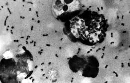 Trung Quốc phát hiện vi khuẩn dịch hạch tại 3 địa điểm ở Nội Mông Cổ