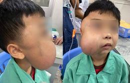 Cắt bỏ khối u xơ vòm mũi họng khổng lồ cho bé trai 13 tuổi
