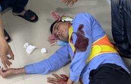 2 nhân viên trạm BOT Ninh Xuân bị hành hung khi đang thu phí đường bộ
