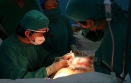 Phục hồi vòng một cho phụ nữ mất mô tuyến vú