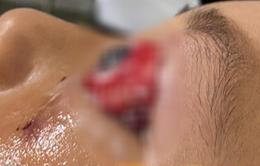 Bé trai bị chấn thương mắt nghiêm trọng khi đi xe đạp