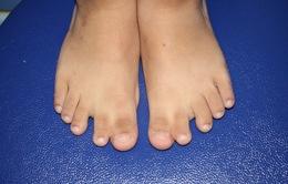 Miễn phí khám, tư vấn điều trị dị tật dính, thừa ngón ở bàn tay, bàn chân