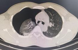 Vỡ kén khí gây tràn khí màng phổi khi chơi thể thao