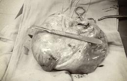 Phẫu thuật cắt u nang buồng trứng tương đương thai 6 tháng tuổi