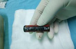 Lấy viên pin bị ăn mòn khỏi... âm đạo bé 7 tuổi
