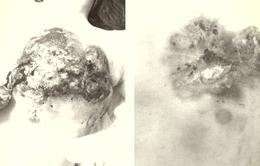 Một phụ nữ bị lở loét vú, hoạt tử nặng do đắp thuốc lá điều trị ung thư